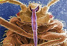 """Cev stenica sa kojom usisavaju krv kod coveka-slika je napravljena specijalnim mikroskopom par sekundi nakon usisavanja.U sredini obojeno ljubicastom bojom je """"cev"""" stenica.Preduzece """"Pest-Global Group DOO Beograd"""" i sajt """"Dezinsekcija.net"""".Izvor """"Wikipedia""""."""