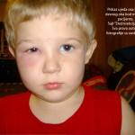 Prikaz ujeda ose ispod desnog obraza pacijenata starosti 11 godina.Klik na sliku za prikaz fotografije sa svim detaljima.