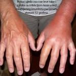 Ujed ose na levoj ruci koja je zahvacena infekcijom bez blagovremenog tretmana.Klik na sliku gore levim misem za prikaz u punoj velicini.