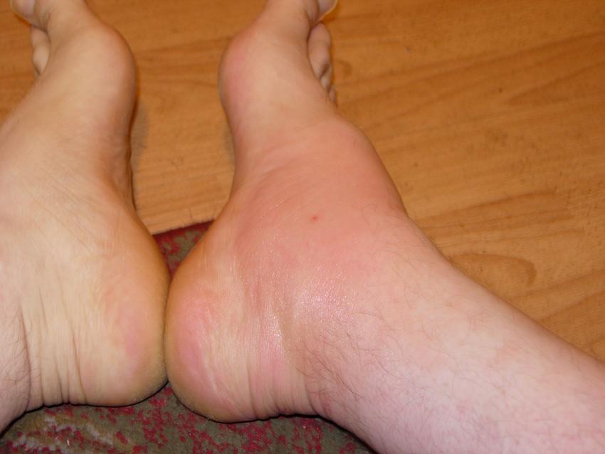"""Prikaz ujeda osa pacijenata uporedjenje leve noge bez ujeda i desne sa ujedom.Fotografija ja napravljena dva dana nakon ujeda.Sajt""""Dezinsekcija.net""""."""